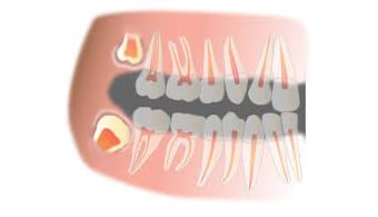Wisdom-Teeth-Treatment Doveton