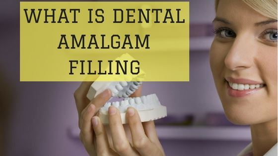 What Is Dental Amalgam Filling