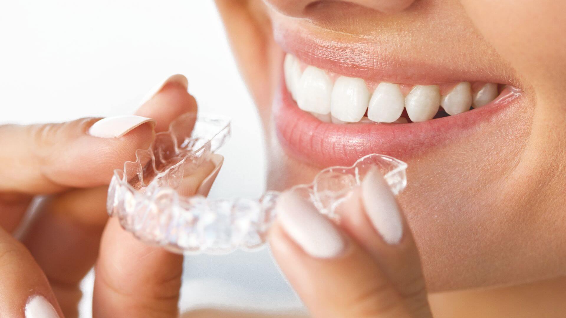 ex[pert dental in clyde