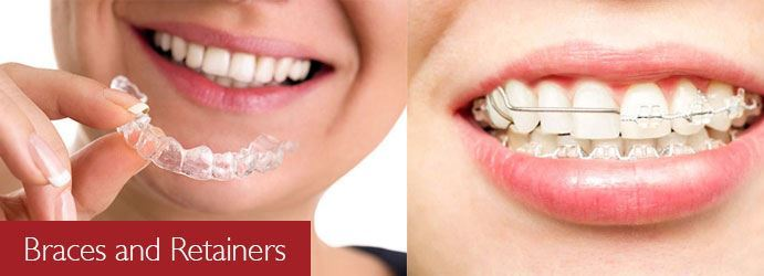 Braces and Retainers