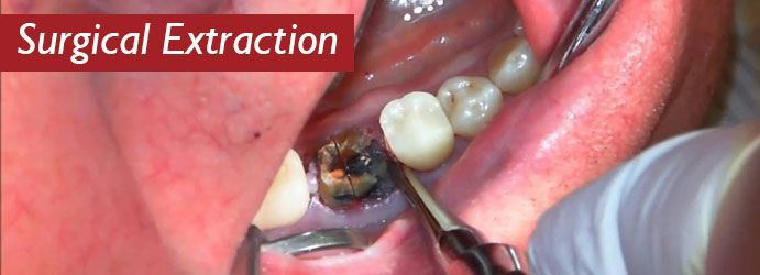 Surgical Extraction
