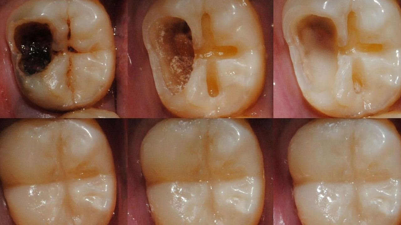 Reverse Tooth Decay