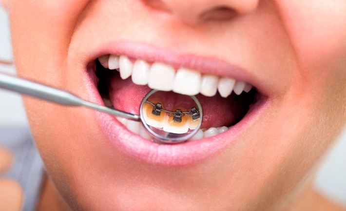 Lingual inside braces