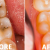 How to Reverse Tooth Decay?