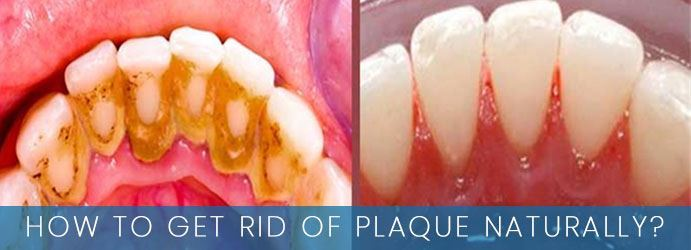 How to Get Rid of Plaque Naturally?