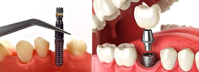 Single Tooth Replacements