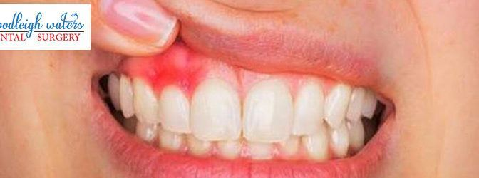 How do You Know If You Have Gum Disease?