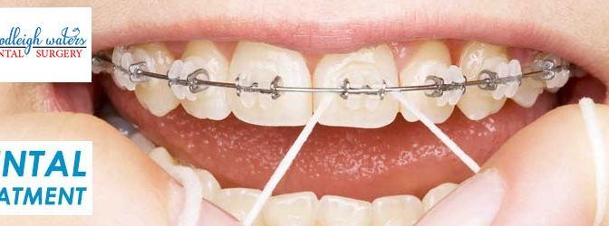 Considering Tips for Choosing a Dentist for Dental Treatment