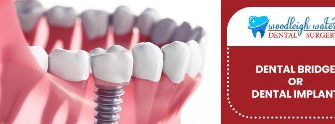 Dental Bridge Or Dental Implant