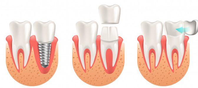 Best Cavities Service